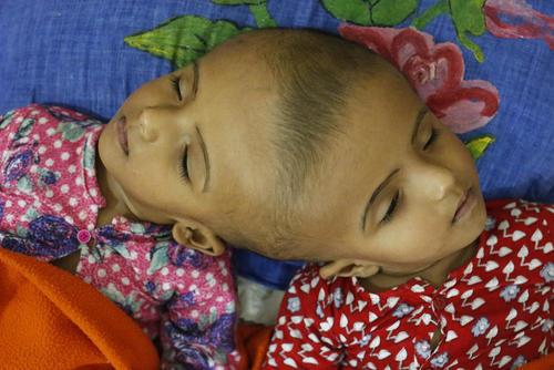 انجام آزمایش های نهایی روی خواهران دوقلوی به هم چسبیده بنگلادشی پیش از جراحی جدایی- داکا