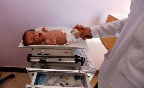 مداوای یک نوزاد مبتلا به سوءتغذیه در بیمارستان سازمان ملل در شهر صنعا یمن/ عکس: خبرگزاری فرانسه