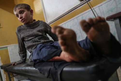 یک نوجوان سوری مصدوم از حمله هوایی، در بیمارستانی در شهر دوما سوریه