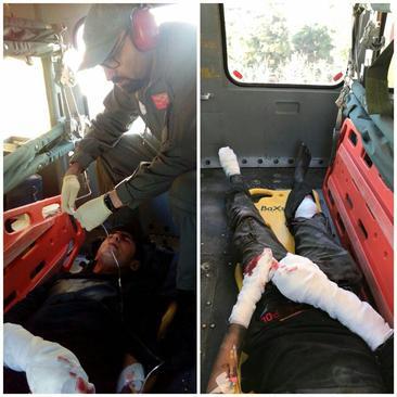 انفجار مواد محترقه در دستان نوجوان 15 ساله تهرانی منجر به قطع ۳ انگشتش شد.