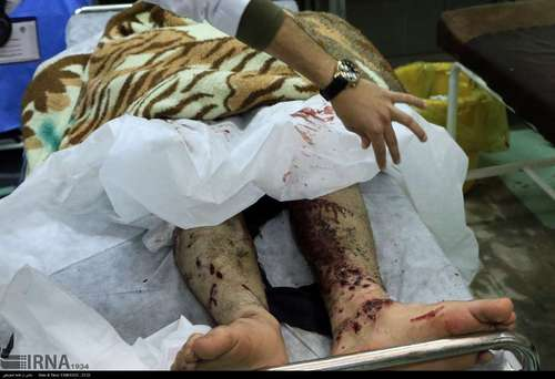 آسیب دیدگان چهارشنبه سوری - ارومیه
