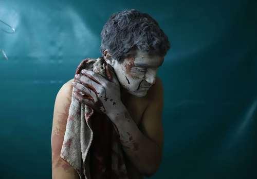 مداوای یک مجروح حملات هوایی ارتش سوریه در بیمارستانی در غوطه شرقی شهر دمشق/ عکس: خبرگزاری فرانسه