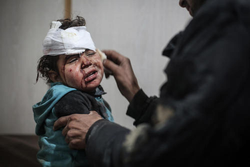 مداوای یک کودک آسیب دیده از حملات هوایی در منطقه غوطه شرقی در سوریه/عکس: DPA