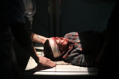 مداوای کودک سوری مجروح در اثر حملات هوایی ارتش سوریه در یک بیمارستان صحرایی در منطقه غوطه شرقی دمشق/عکس: DPA
