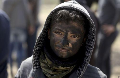 سیاه شدن صورت نوجوان معترض فلسطینی در مرز باریکه غزه به دلیل آتش زدن تایرهای خودرو برای از بین بردن اثر گاز اشک آور نیروهای اسراییلی