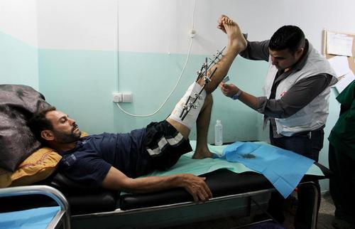 یک فلسطینی زخمی شده به دست سربازان ارتش اسراییل در حال مداوا در کلینیک