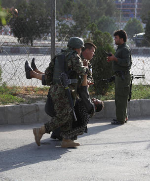 انتقال زخمیهای یک حمله تروریستی در شهر کابل افغانستان / شینهوا