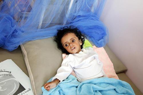 یک کودک دچار سوء تغذیه شدید در بیمارستانی در شهر صنعا یمن/ شینهوا