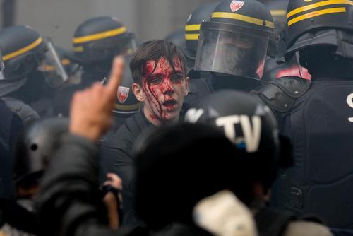 یک معترض مصدوم در تظاهرات اتحادیههای کارگری فرانسه علیه سیاستهای اقتصادی امانوئل ماکرون رییس جمهوری فرانسه/ پاریس