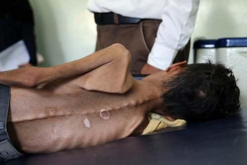 یک پسربچه 10 ساله یمنی مبتلا به سوء تغذیه در بیمارستانی در شهر تعز یمن/ یمن تحت محاصره همهجانبه  و حملات عربستان سعودی است./ خبرگزاری فرانسه