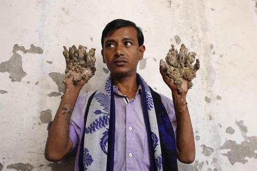 مرد درختی بنگلادش در حال نشان دادن دستهایش به رسانهها. او برای مداوا به یک کلینیک در شهر داکا رفته است. او مبتلا به یک سندرم نادر بیماری پوستی است که به آن