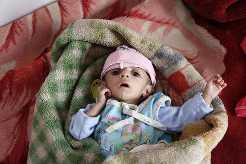 یک نوزاد یمنی دچار سوء تغذیه در بیمارستانی در شهر صنعا / شینهوا