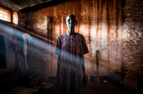 اردوگاه آوارگان سودان جنوبی در جمهوری دموکراتیک کنگو/ گتی ایمجز