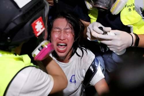 ترکیب گاز فلفل و اشک آور روی صورت یک معترض هنگ کنگی/ رویترز