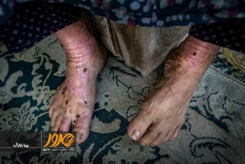 رخسار عمویی امسال ششمین دهه زندگی خود را پشت سر می گذارد. 20 سالی است که جدا از بیماری های قند، فشار خون و پوکی استخوان، مبتلا به بیماری پوستی نیز شده است. محل سکونت او با دفنگاه سراوان، کمتر از 5 کیلومتر فاصله دارد. او با همسرش زندگی می کند و تنها منبع درآمد آنها زمین کشاورزی است که روی آن کار می کنند. بیماری او یکی از وخیم ترین بیماری های پوستی در این منطقه است.