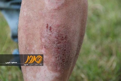 دست ها و پاهایش به شدیدترین شکل ممکن دچار خارش و دانه پوستی قرمز پر از چرک و دلمهدار شده است.