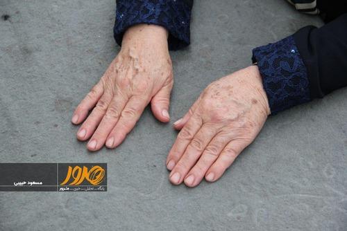 تصویری از دست های نرگس پسدست، 64 ساله از اهالی کلسرگ سروان است. او به مدت چهار سال است که با ضایعات پوستی روبرو شده است. مدت هاست سرطان معده به درون خانه او هم آمده و همسرش را به خاطر این بیماری مهلک از دست داده است. او نگران است که ساکنان این روستا، در آینده با بیماری های فراگیرتری مواجه شوند.