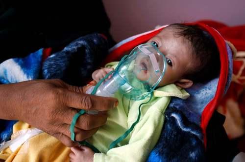 یک کودک یمنی دچار سوء تغذیه در بیمارستانی در شهر صنعا/ EPA
