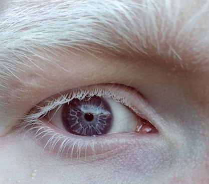 مردمکهای بنفش رنگ یک فرد زال (آلبینو)