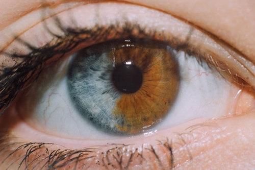 «چشم دوستم دو رنگ است!»