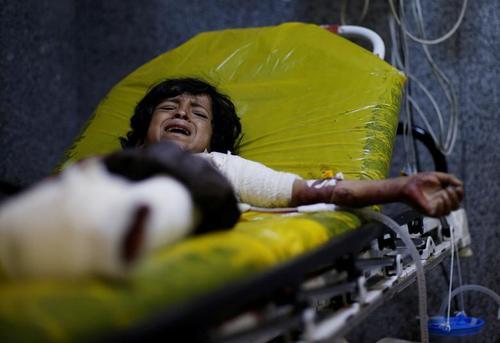 زخمیهای غیرنظامی حمله هوایی عربستان سعودی به استان