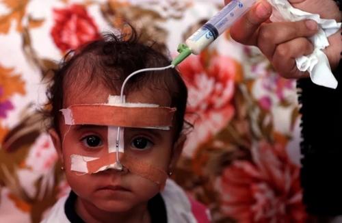 غذا دادن با سرنگ به یک کودک یمنی دچار سوء تغذیه در بیمارستان تحت حمایت سازمان ملل در شهر صنعا/ EPA