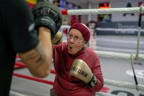 زن 75 ساله مبتلا به بیماری