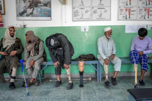 ارایه خدمت به قربانیان جنگ در یک مرکز توانبخشی صلیب سرخ در شهر کابل افغانستان/ خبرگزاری فرانسه